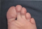 hand-foot-mouth-02.jpg
