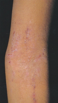 atopic_dermatitis05.jpg